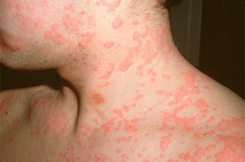 Чтобы снять кожные проявления пищевой аллергии, народная медицина советует пользоваться ваннами из ромашки