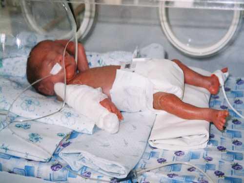 Мышечный тонус у недоношенных детей слабый, физиологические рефлексы и двигательная активность снижены, реакция на раздражители замедлена, терморегуляция нарушена, имеется склонность как к гипо, так и гипертермии