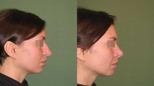 Совет врача: как решить проблему горбинки на носу