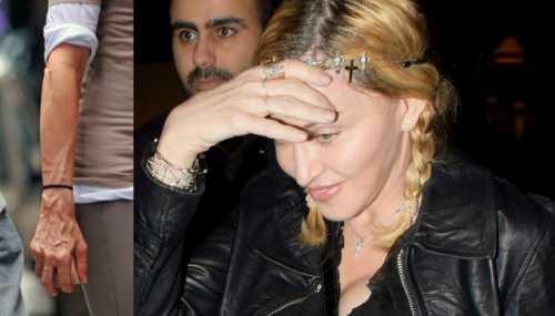 Секрет вечной молодости Мадонны – в правильных процедурах